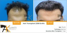 Hair Transplant Surgery Before and After – 2358 Grafts by Dr Kapil Dua Hair Transplant In India, Hair Transplant Results, Hair Transplant Surgery, Aesthetic Dermatology, Best Multivitamin, Male Pattern Baldness, Hair Falling Out, Hair Breakage, Lip Fillers