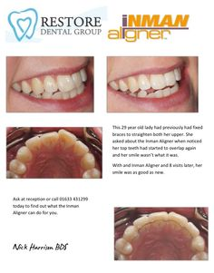 Our latest patient to finish her treatment with the Inman Aligner