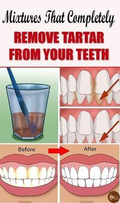 """Natural Teeth Whitening Remedies """"Tartar (forms) below and above the gun line. It is rough and porous and can lead to receding gums and gum disease."""" – WebMD Most everyone wants sparkling white teeth – it looks and feels good. Teeth Whitening Remedies, Natural Teeth Whitening, Teath Whitening, Gum Health, Oral Health, Health Care, Dental Health, Health Tips, Teeth Health"""