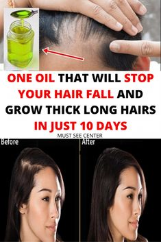 Balding is a typical condition that influences both, types of people. In any case, it is normally ladies that Oil For Hair Loss, Male Pattern Baldness, Healthy Lifestyle Motivation, Body Detox, Skin Problems, Healthy Tips, Healthy Recipes, Fall Hair, 10 Days