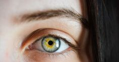 Discuss about 5 ways to take care of your eyes. This article is given positive result for your eyes Care And Improvement.Take Care of Eyes Aorta Abdominal, Massage, Implant, Human Eye, Human Body, Natural Eyes, Puffy Eyes, Cellulite, Contour