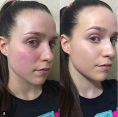 These 8 Products Work Wonders On Red, Sensitive Skin skin face skin no makeup skin requires commitment skin secrets skin tips Redness On Face, Face Skin, Reduce Face Redness, Red Face Remedies, Rosacea Remedies, Natural Remedies For Rosacea, Skin Tips, Skin Care Tips, Hair And Beauty