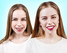 A pretty face but crooked teeth lowers your personality so braces have been a help. Orthodontic (Dental) treatment does not only give you ...