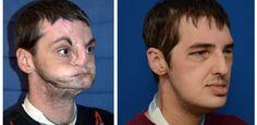 A CARA DE VITÓRIA: Curiosidades: Homem que sofreu transplante de rost...