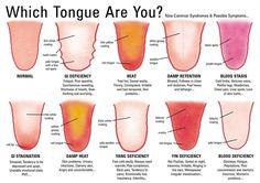 In de chinese geneeskunde is de tongdiagnose een belangrijk onderdeel van het onderzoek/vraaggesprek. Het kan veel informatie geven over de gezondheidstoestand