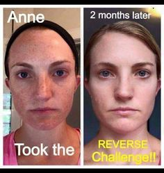 Wow! Look what our award-winning Reverse regimen can do. It not only gets rid of sun damage and dark marks but also gives your skin a nice healthy glow. Love it! #teamgive #rodanandfields #reverse #antiaging #freckles #sunspots #sundamage #melasma #riskfree