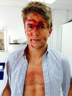Poor Ethan! || Ethan Hardy || Casualty Casualty Cast, Ian And Mickey, Holby City, Episodes Series, Media Makeup, Special Effects Makeup, Television Program, Makeup Looks, Make Up Looks