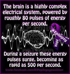 And feels like you had an electrical short after you have a seizure / Epilepsia en tu idioma Epilepsy Research, Epilepsy Facts, Epilepsy Quotes, Epilepsy Awareness Month, Epilepsy Seizure, Epilepsy Tattoo, Temporal Lobe Epilepsy, Epilepsy Treatment, Seizure Disorder
