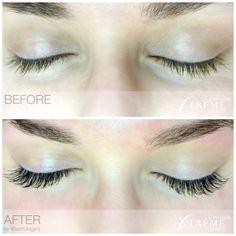 Before & After. Xtreme Lashes Eyelash Extensions by Lashology NJ