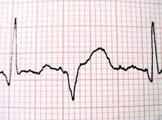 How to Read Blood Presure & Heart Monitor at Hospital Bedside