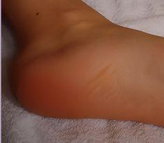 Un petit truc santé beauté du terroir pour les pieds secs ! Et ça marche !