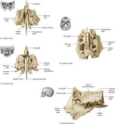 ethmoid bone : most deep of the skull . lies between sphenoid and, Sphenoid