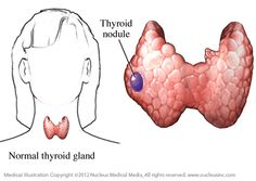 Thyroid nodules are solid lumps which usually arise in the thyroid gland. This page caters all the important information about thyroid nodules. Thyroid Disease Symptoms, Thyroid Nodules, Underactive Thyroid, Thyroid Diet, Thyroid Issues, Thyroid Hormone, Thyroid Problems, Thyroid Health, Hypothyroidism