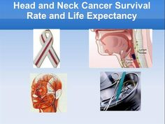 Head and neck cancer survival rate by caren8.lee via authorSTREAM