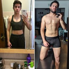 Radical change is possible. Right: Summer 2018 post-. Transgender Ftm, Radical Change, Trans Boys, Operation, Gay Pride, Surgery, Silicone Tape, Equality, People