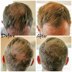 Before and After photos of using Viviscal Hair Filler Fibers - No more thin hair!