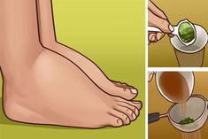 Watch This Video Ambrosial Home Remedies Swollen Feet Ideas. Inconceivable Home Remedies Swollen Feet Ideas. Foot Remedies, Arthritis Remedies, Headache Remedies, Skin Care Remedies, Health Remedies, Natural Remedies, Parsley Tea, Water Retention Remedies, Cold And Cough Remedies