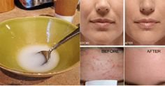 After washing your face with the following remedy, you'll have reduced wrinkles, no saggy skin and no acne.