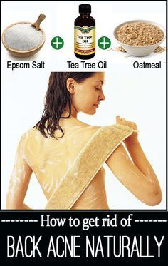 18 Home Remedies for Back Acne
