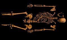 Richard III: DNA confirms twisted bones belong to king  Skeleton found beneath Leicester car park confirmed as that of Richard III. That is some serious spine curvature there! Also I wonder why his feet were missing..hmm