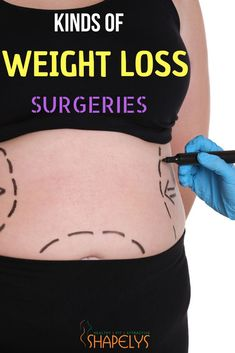 ffb5a9041b We are talking about bariatric (weight loss) surgeries