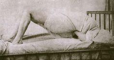 Arch of Hysteria. Image: Paul Regnard, 1877. Salpetriere.  Augustine, I believe.