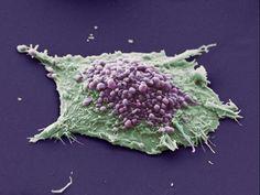Burn-damaged Skin Cell