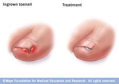 Illustration showing ingrown toenail treatment