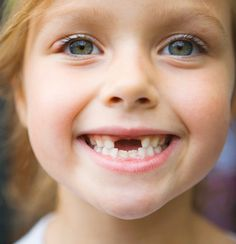 When kids smile and are missing a few teeth :D