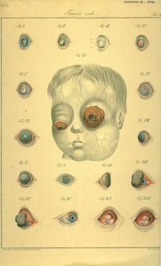 Good thing I'm going to the Ophthalmologist today! from The James Moore Ball Ophthalmology Collection. The National Museum of Health and Medicine. Medical Drawings, Medical Art, Medical Science, Medical History, Memento Mori, Illustrations Médicales, Medical Illustrations, Realistic Eye Drawing, Vintage Medical