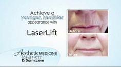 LaserLift is the trademark procedure for treating wrinkles, pore size, and overall skin texture for younger looking skin.     Aesthetic Medicine has moved to a new office location at 4800 SW Meadows Road, Suites 100 & 150, Lake Oswego, OR 97035. Our telephone number will remain the same at (503) 697 9777. For more information visit www.drdarm.com.
