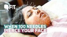 acupuncture needles on face - Google Search Acupuncture, Google Search, Face, The Face, Faces, Facial