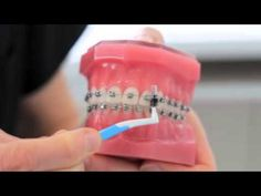 Good oral hygiene is essential, particularly when you're wearing braces. We created this video for our patients, providing them with a step-by-step guide on . Braces Smile, Braces Tips, Best Oral, Oral Hygiene, Teeth, Tooth
