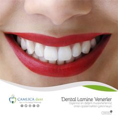 Diş Hekimliğinde Estetik http://www.camlicadent.com/services/estetik/
