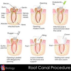 Root Canal Procedure  #rootcanal #patienteducation