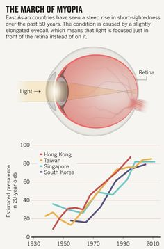 Researchers find the biggest risk factor for nearsightedness isn't looking at screens or reading books, it's a lack of exposure to bright light, like outdoors. The leading hypothesis: Light releases dopamine in the retina and blocks deformation.