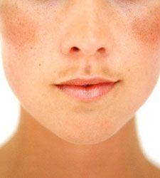 Seja por conta da gestação, dos anticoncepcionais ou por conta do sol as manchas no rosto são algo que incomodam muito, principalmente as mulheres. Sem contar que elas aparecem na linha do buço em cima do lábio, nas bochechas, na testa, em cima das...