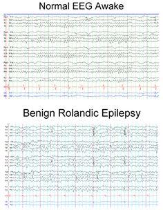 EEG of benign rolandic epilepsy patient