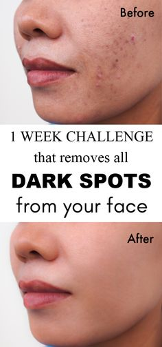 1 Week Challenge That Removes All Dark Marks/Spots From Your Face skin skincaretips skincareroutine diyhacks beauty clearskin darkspots 626141154426804160 Spots On Face, Skin Spots, Simply Health, Face Massage, Dark Mark, Healthy Skin, Healthy Life, Stay Healthy, Healthy Living