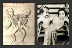 Images For Josef Mengele Experiments...