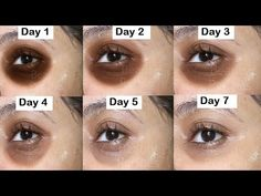 Remove Dark circles around eyes with cucumber. Cucumber eye gel helps to remove under eye bags, and wrinkles around your eyes. this anti aging gel helps Dark Circles Around Eyes, Remove Dark Eye Circles, Cucumber On Eyes, Cucumber Juice, Dark Circle Remedies, Under Eye Wrinkles, Prevent Wrinkles, Beauty Tips For Glowing Skin, Dark Under Eye