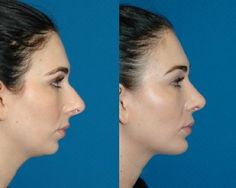 open rhinoplasty and chin implant – lindagreco.topwom… – – Linda Greco open rhinoplasty and chin implant – lindagreco.topwom… – open rhinoplasty and chin implant – lindagreco. Nose Plastic Surgery, Plastic Surgery Procedures, Cosmetic Procedures, Rhinoplasty Before And After, Double Chin Reduction, Facial Cosmetic Surgery, Chin Implant, Feminine Face, Make Up