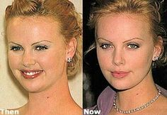 Charlize Theron nose job, face lipo, and just noticed those over-plucked brows, . Megan Fox Plastic Surgery, Plastic Surgery Photos, Celebrity Plastic Surgery, Charlize Theron, Celebrities Before And After, Celebrities Then And Now, Chin Liposuction, Bad Plastic Surgeries, Celebs Without Makeup