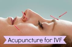 Acupuncture for IVF Success: How Does it Rate?