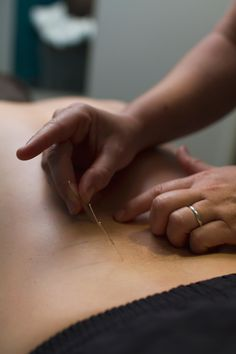 Acupuncture; Treatment; Physionorth, Townsville, QLD