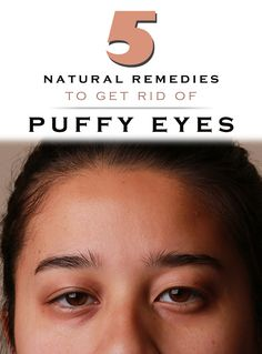 5 natural remedies to get rid of puffy eyes.
