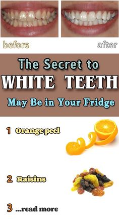 The Secret to White Teeth Can Be in Your Fridge - Catalogue of Remedies Beauty Hacks Lips, Beauty Secrets, Beauty Tips, High Glycemic Foods, Happy Skin, Healthy Teeth, White Teeth, Teeth Whitening, Good Skin