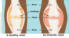 publication physiotherapy juvenile idiopathic arthritis