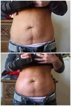 Easy methods to Make Your Saggy Stomach Skin Smooth Naturally – Lauren Oliver – beauty skin care Tighten Stomach, Tighten Loose Skin, Loose Weight, How To Lose Weight Fast, Reduce Weight, Diy Body Wrap, Skin Tightening Cream, Skin Bumps, Before And After Diy