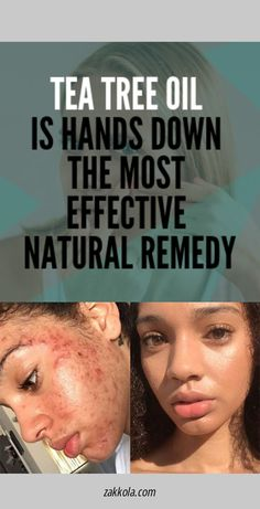 Scar Remover 1 tbsp organic honey 1 tbsp freshly squeezed organic lemon juice 1 tbsp fresh ground nutmeg 1 tbsp powdered cinnamon Leave on for 20 more minutes and rinse off. Big Pimple, Skin Growths, Anabolic Steroid, Acne Causes, Physical Change, Menstrual Cycle, Acne Remedies, Tea Tree Oil, Acne Treatment